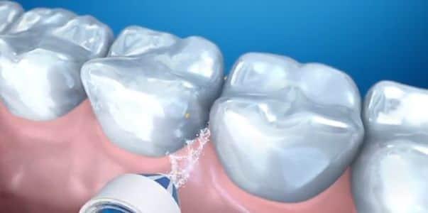 Irrigador Oral B Smart 5000