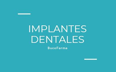 tipos de Implantes dentales blog